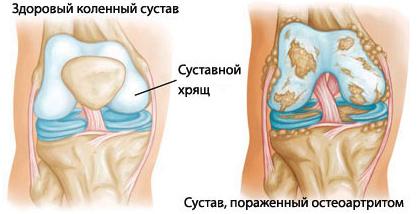 Сустав, параженный остеоартритом