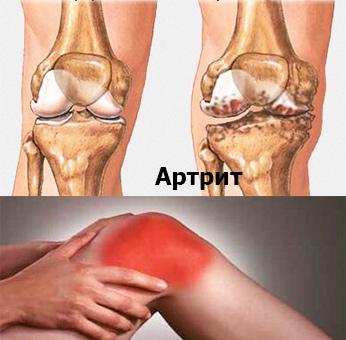 Как вылечить артроз и артрит коленного сустава