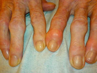 народные средства при ревматоидном артрите суставов