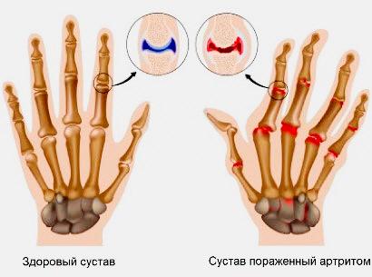 Что такое артрит пальцев рук?