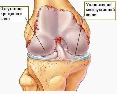 Artroz kolennogo sustava-2