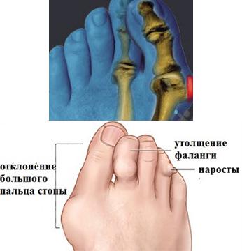 Артроз стопы