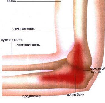 Изображение - Неприятные ощущения в локтевом суставе boli-v-lokte-2