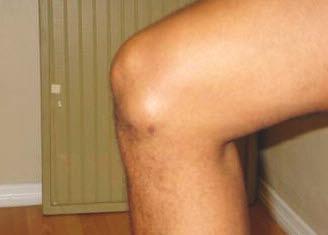 Лечение бурсита колена