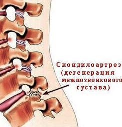 спондилоартроз шейного отдела