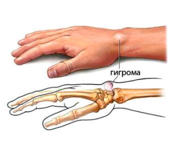 Симптомы артроза лучезапястного сустава