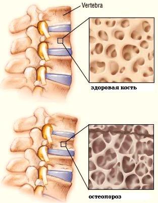 Стадии остеопороза позвоночника
