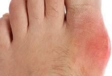 Подагрический артрит