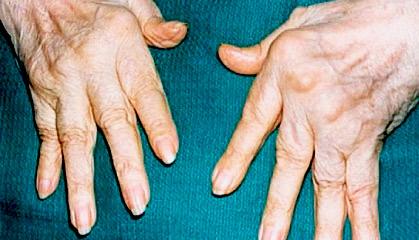 Полиартрит на 3 стадии