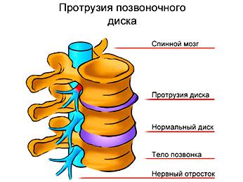 Протрузия межпозвоночного диска - грыжа