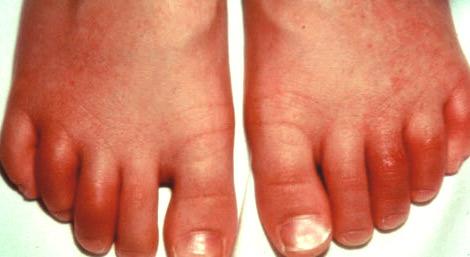 Острый реактивный артрит пальцев ног