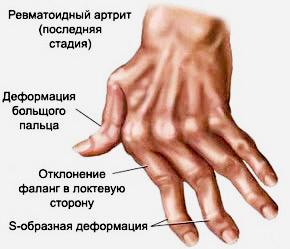 Ревматоидный полиартрит суставов кисти