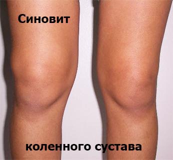 Синовит коленного сустава лечение лечебный пластырь китайский для суставов