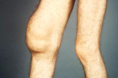 Синовит правого колена
