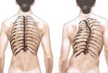 Сколиоз позвоночника грудного отдела